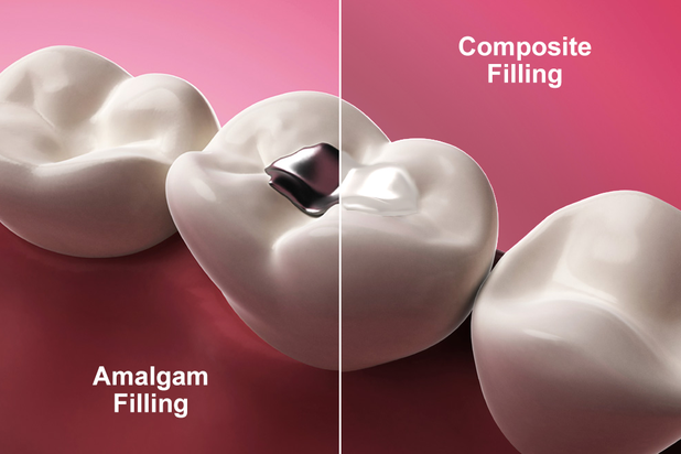 Composite vs amalgam fillings drsarian dental clinic composite vs amalgam fillings solutioingenieria Choice Image